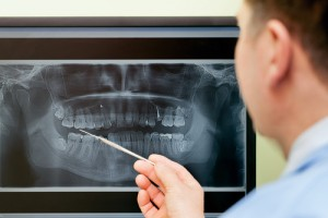 8 Situations That Call For Dental X-Rays