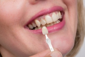 Common Dental Crown Problems and Solutions
