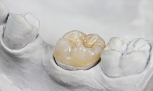 A dental crown resting on a dental model of the molars.