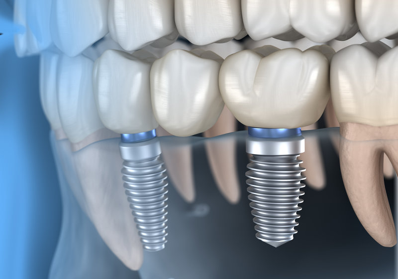 Picture of a dental bridge supported by a dental implant.