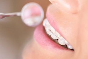 Why Should I Visit My Dentist During Orthodontic Treatment