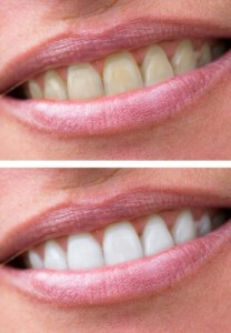 10-reasons-why-teeth-darken-and-discolor