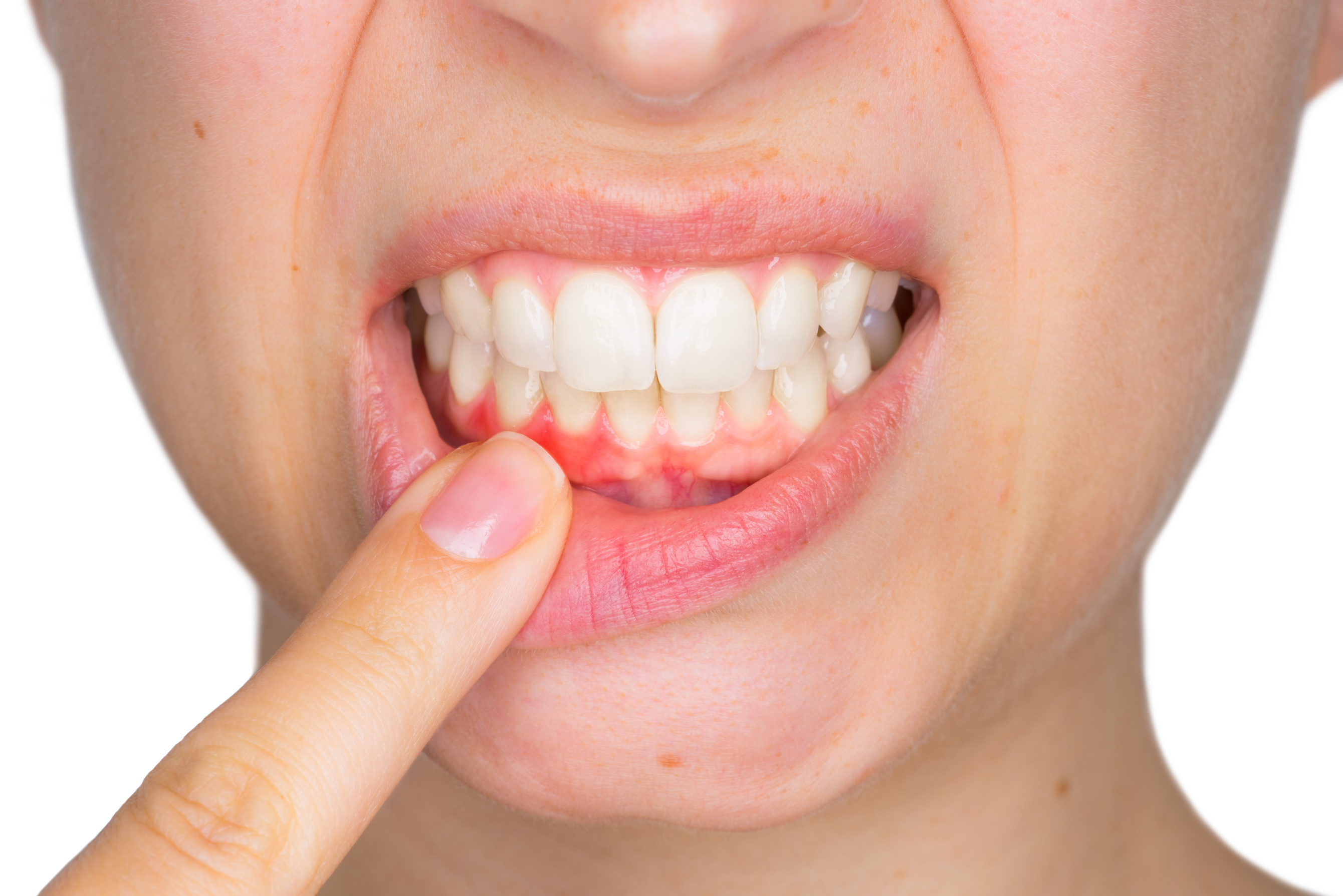 Tooth poking through gum of How to