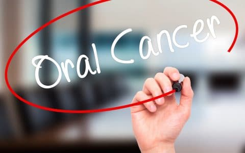 When Was Your Last Oral Cancer Screening?