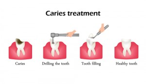 All About Dental Fillings