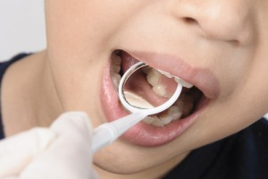 Are Dental Sealants Safe