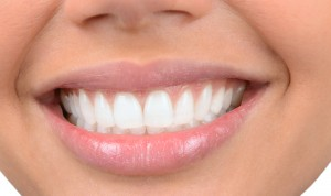 A close-up view of a beautiful, straight, white smile.