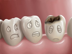 Digital representation of healthy teeth being afraid of a decaying tooth next to them.