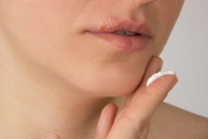 Herpes sore with pus on the lips of the young beautiful girl and a white cream on her finger