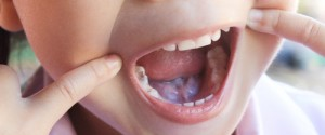 Early Childhood Tooth Decay - Is Your Child at Risk