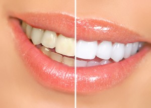 A close-up view of a mouth that has yellow teeth before teeth whitening and then newly-whitened teeth.