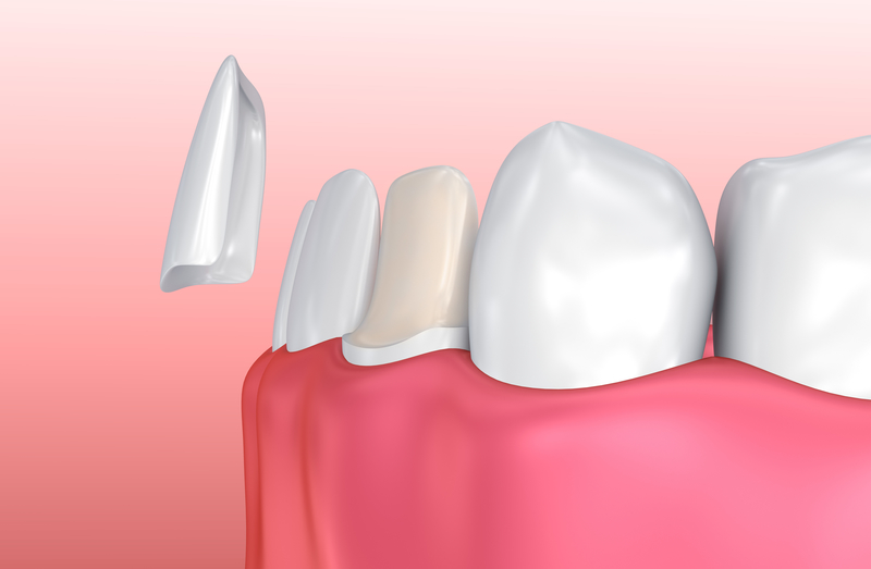 Illustration of how a dental veneer is fitted onto a tooth.