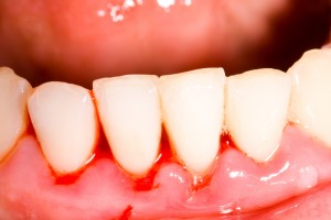 Very close-up view of a person's four front teeth with gum disease in their gums.