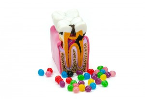 Model of a tooth that shows both the inside and the outside of the tooth. The model is surrounded by colorful candies.