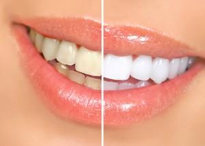 Teeth Whitening in Parker
