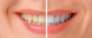 Tooth Whitening Options_01