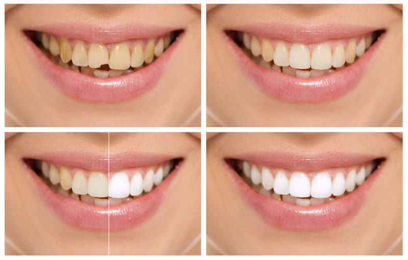 Image of 4 images of a person's teeth that have tooth erosion and their transition to being beautiful, white teeth.