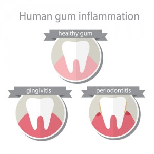 Types of Gum Disease and How to Treat Them