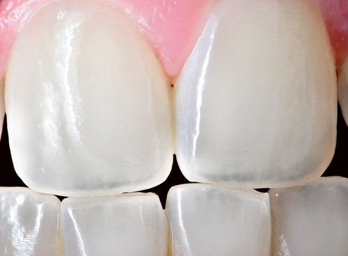 What To Do About Worn And Missing Enamel