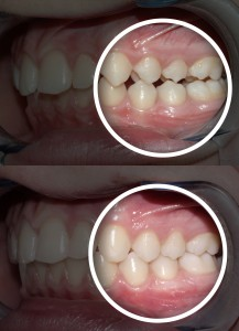 dentistry, malocclusion, after, before, cosmetic, occlusion, orthodontics, dental care, teeth, smile, mouth, treatment, dentists