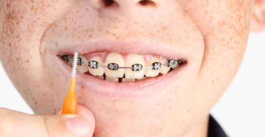 How to Care for Your Teeth While Wearing Braces